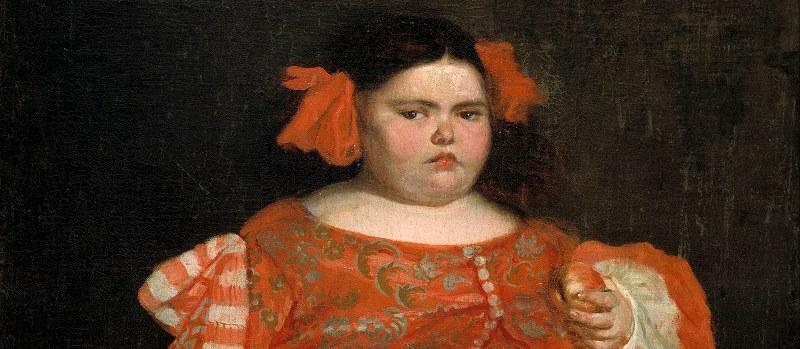 Sindrome di Prader-Willi cosa vuol dire