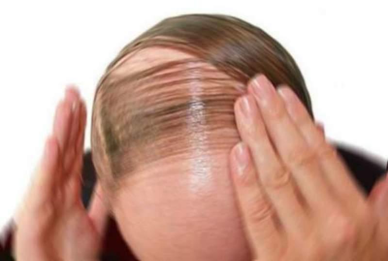 caduta-capelli-rimedio_800x539